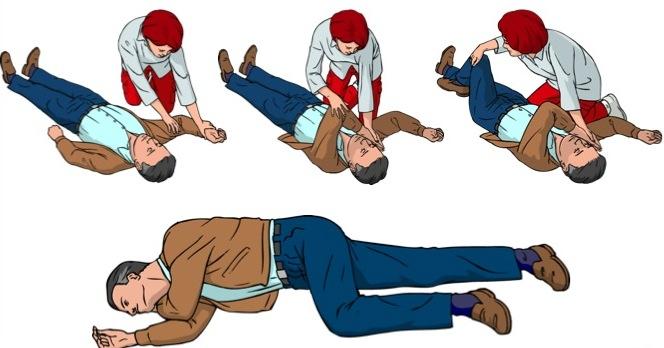 Que faire en cas de traumas ? Après une crise convulsive, placer la victime en PLS