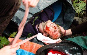 Que faire en cas de traumas crâniens ?